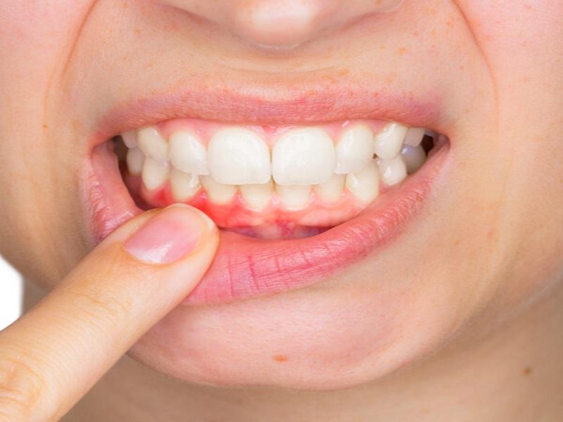 Home remedies for bleeding gums (image credit- Google)